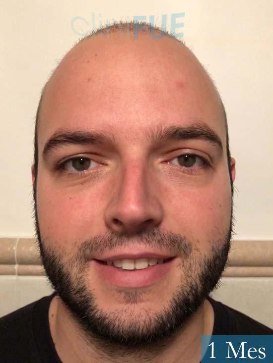 Ferran 28 Barcelon trasplante turquia 1 mes