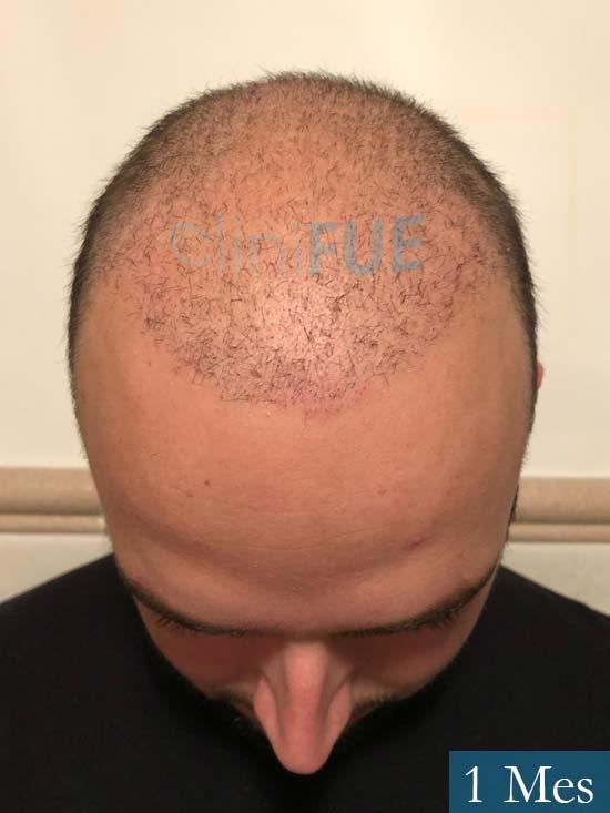 Ferran 28 Barcelon trasplante turquia 1 mes 2