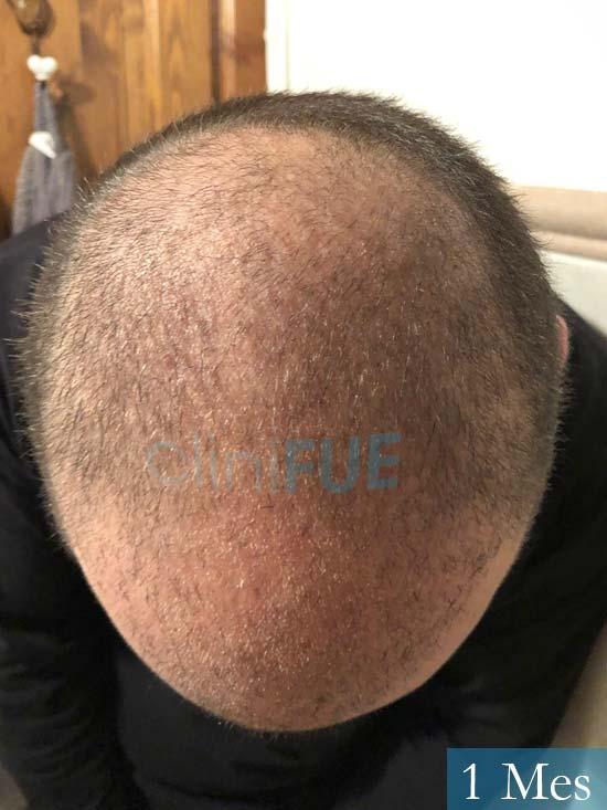 Ferran 28 Barcelon trasplante turquia 1 mes 3