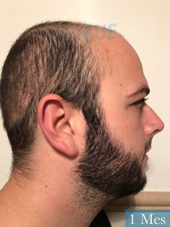 Ferran 28 Barcelon trasplante turquia 1 mes 4