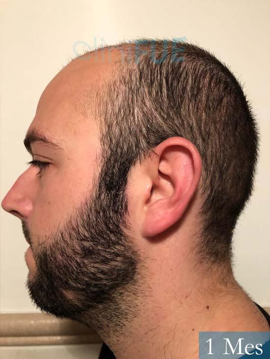 Ferran 28 Barcelon trasplante turquia 1 mes 5