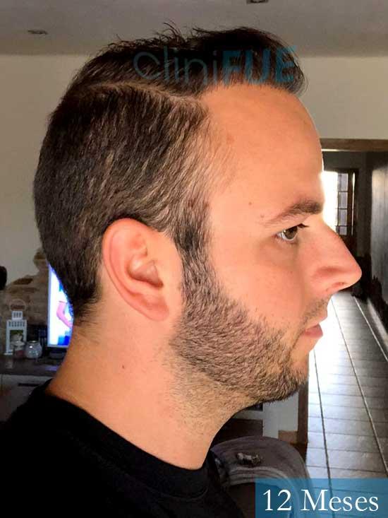 Ferran 28 Barcelon trasplante turquia 12 meses 3