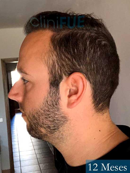 Ferran 28 Barcelon trasplante turquia 12 meses 4