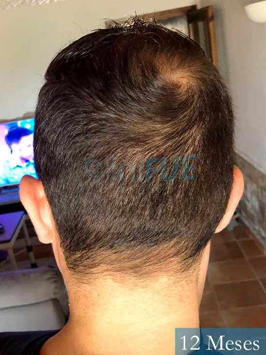 Ferran 28 Barcelon trasplante turquia 12 meses 5