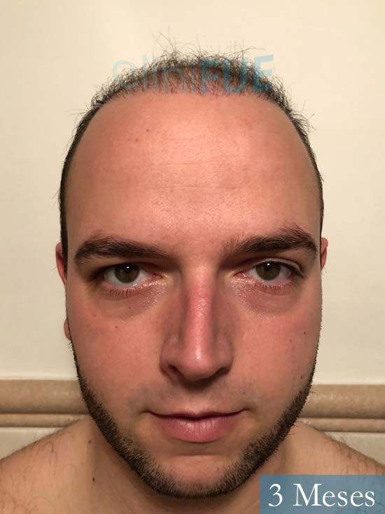 Ferran 28 Barcelon trasplante turquia 3 meses