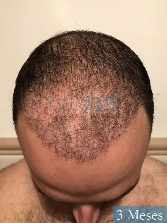Ferran 28 Barcelon trasplante turquia 3 meses 2