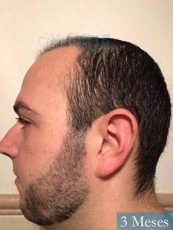 Ferran 28 Barcelon trasplante turquia 3 meses 5