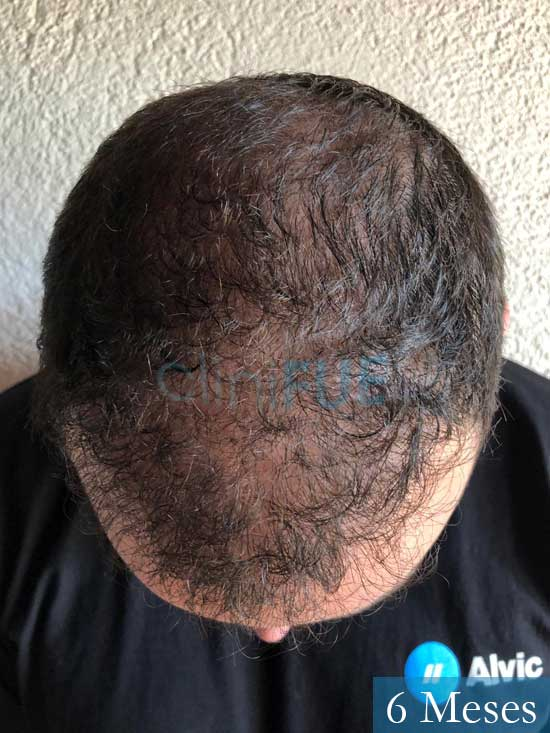 Ferran 28 Barcelon trasplante turquia 6 meses 3