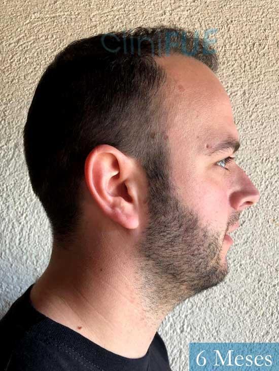 Ferran 28 Barcelon trasplante turquia 6 meses 4