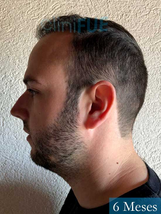Ferran 28 Barcelon trasplante turquia 6 meses 5