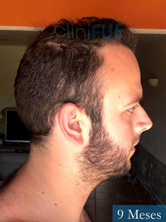 Ferran 28 Barcelon trasplante turquia 9 meses 3