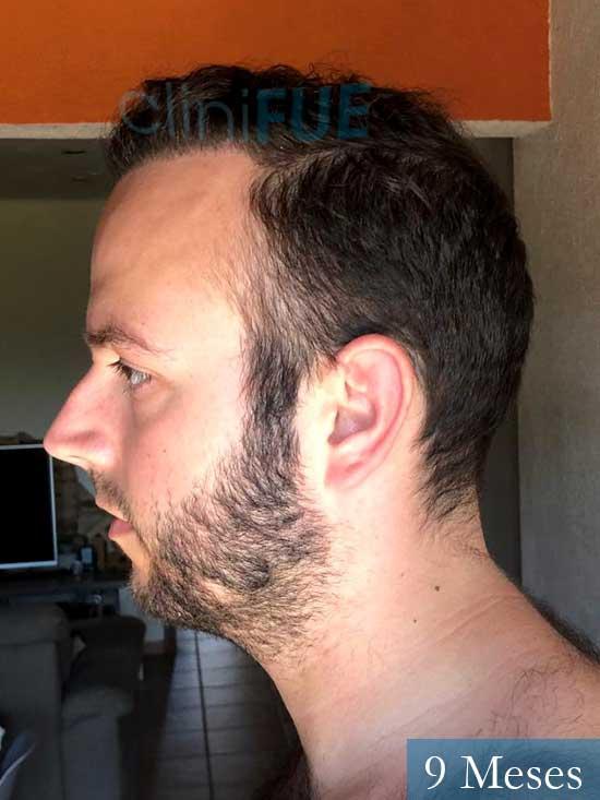Ferran 28 Barcelon trasplante turquia 9 meses 4