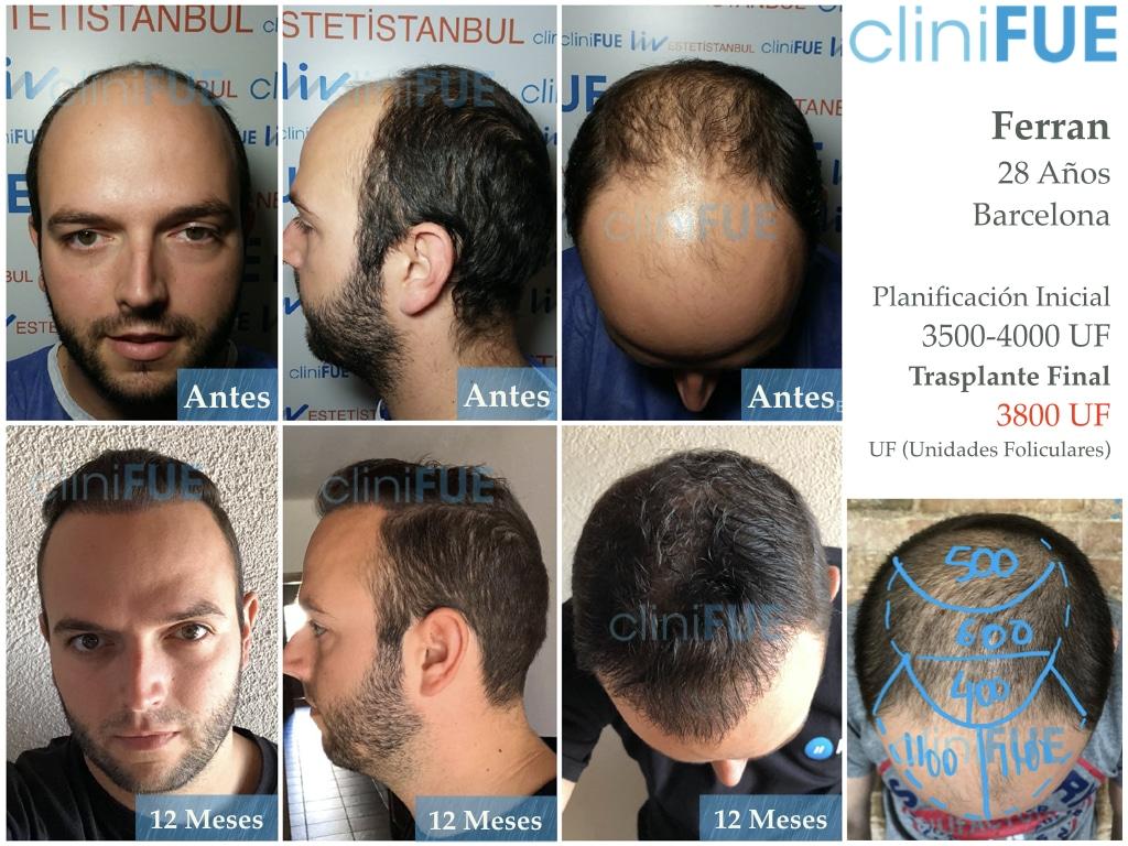 Ferran 28 Barcelon trasplante turquia