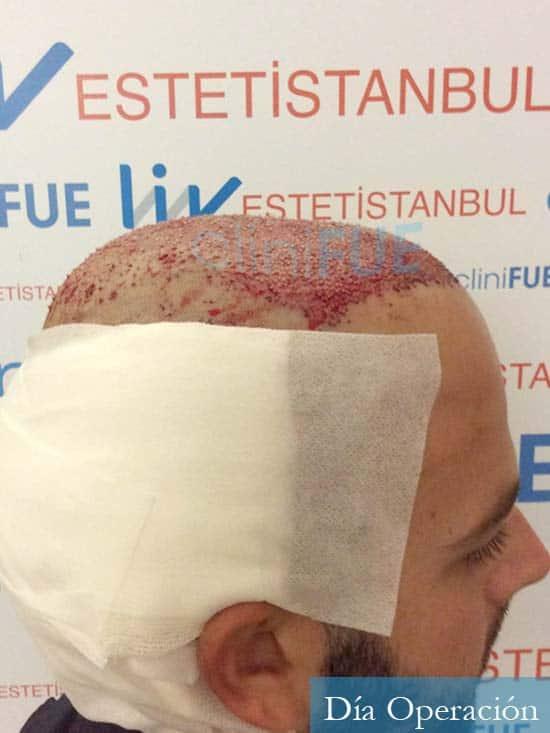 Ferran 28 Barcelona injerto de pelo dia operacion 3
