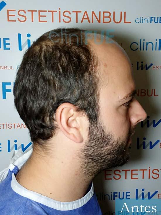 Ferran 28 Barcelona injerto de pelo dia operacion antes 3