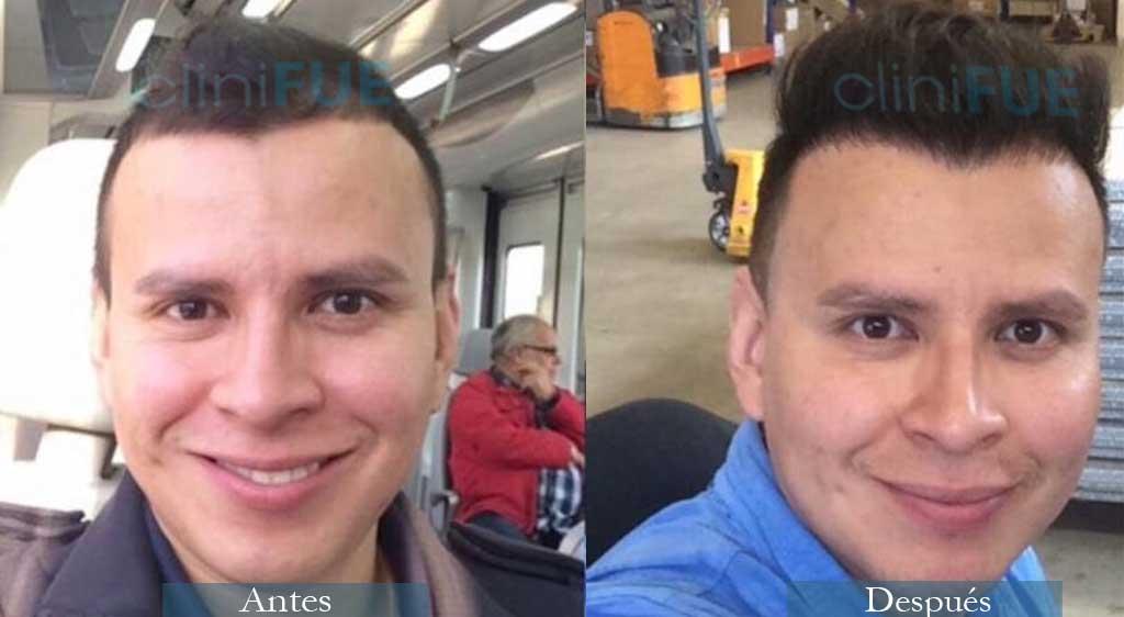 Injerto capilar de Robert 31 Años con cliniFUE