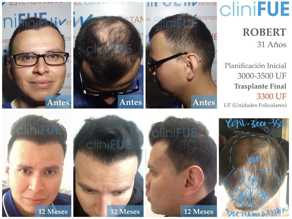 Robert 31 anos injerto de pelo