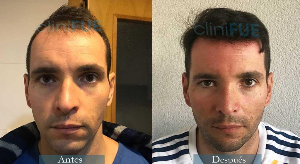 Trasplante capilar de José Iñaki 34 Años de Alicante con cliniFUE