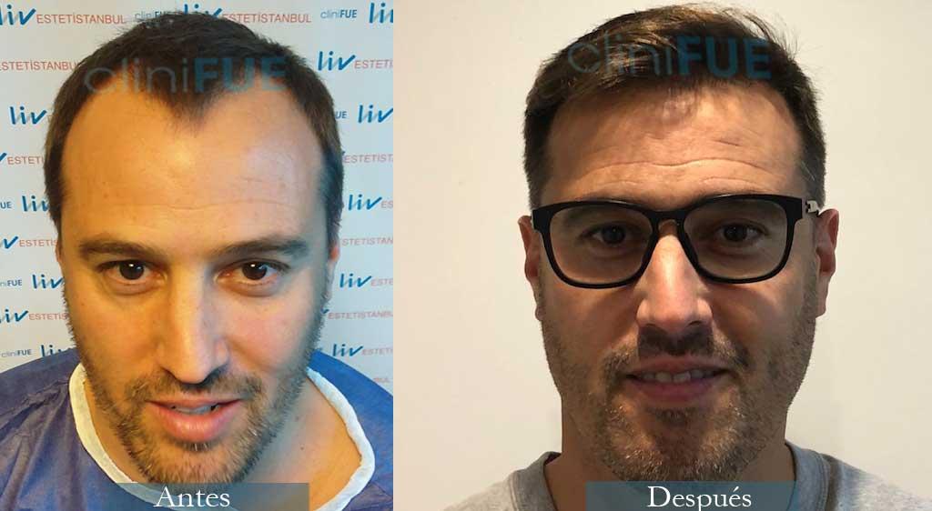 Trasplante capilar de Josep 41 Años de Barcelona con cliniFUE