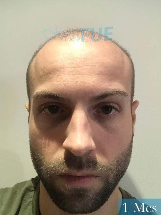 Alberto 27 Valencia trasplante capilar cliniFUE 1 mes