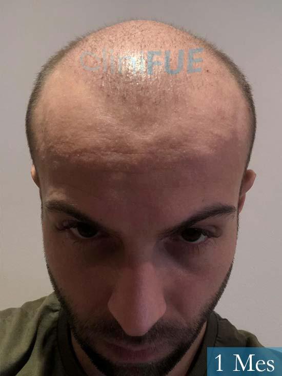 Alberto 27 Valencia trasplante capilar cliniFUE 1 mes 2