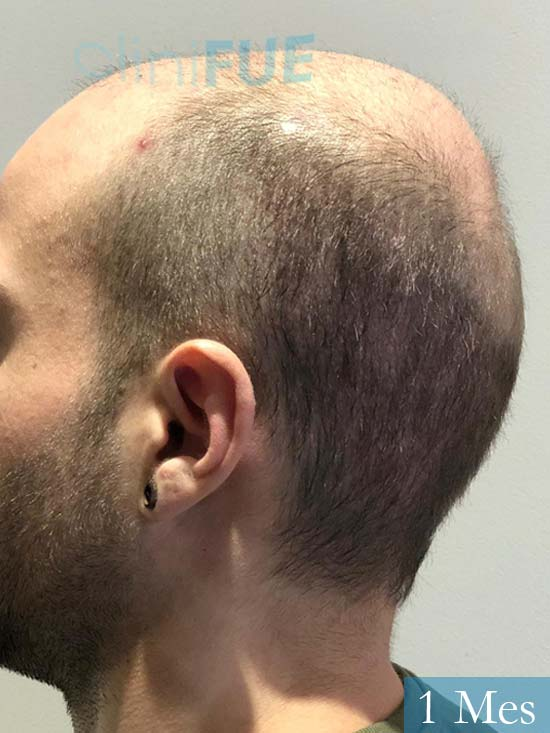 Alberto 27 Valencia trasplante capilar cliniFUE 1 mes 5