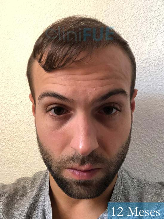 Alberto 27 Valencia trasplante capilar cliniFUE 12 meses