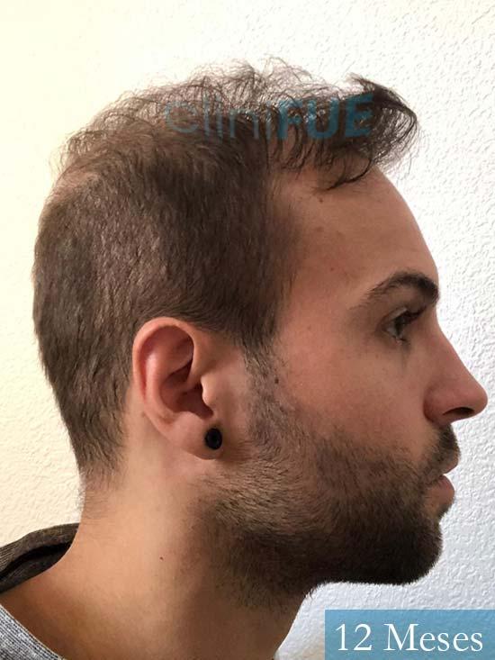Alberto 27 Valencia trasplante capilar cliniFUE 12 meses 3