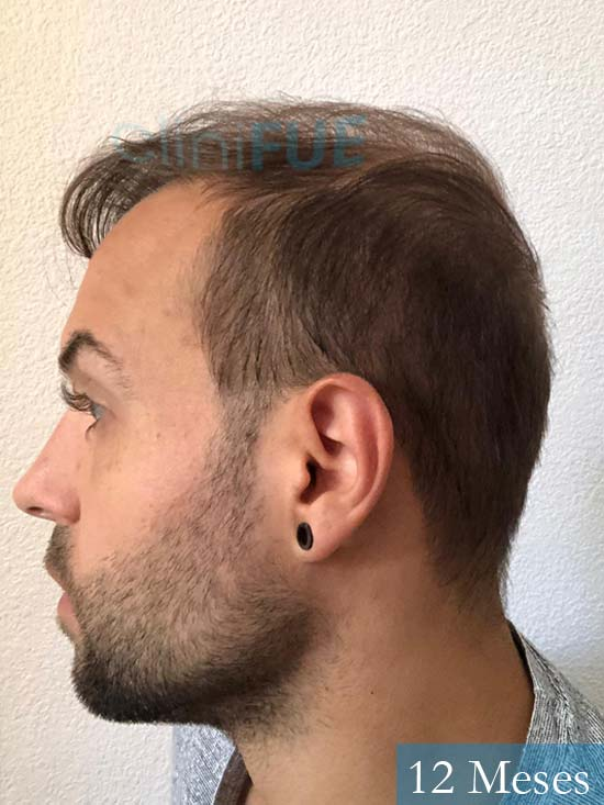 Alberto 27 Valencia trasplante capilar cliniFUE 12 meses 4