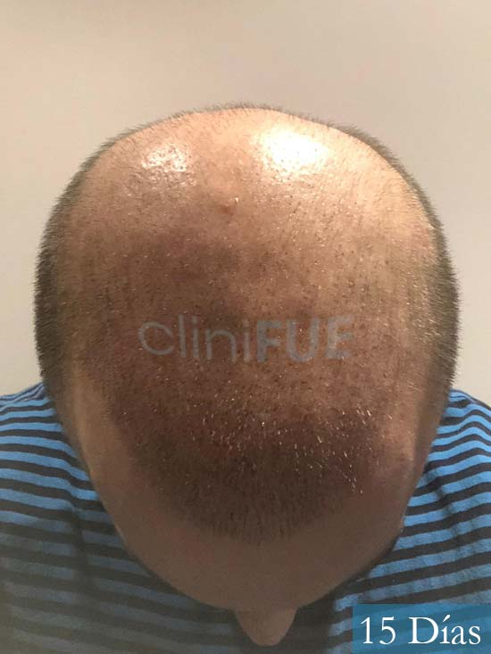 Alberto 27 Valencia trasplante capilar cliniFUE 15 dias 3