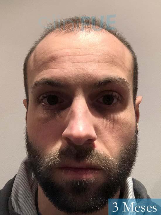 Alberto 27 Valencia trasplante capilar cliniFUE 3 meses