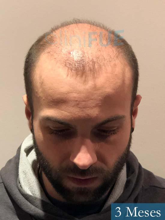 Alberto 27 Valencia trasplante capilar cliniFUE 3 meses 2