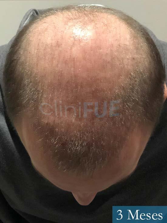 Alberto 27 Valencia trasplante capilar cliniFUE 3 meses 3