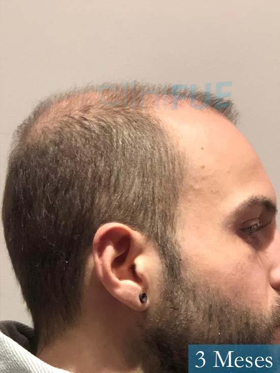 Alberto 27 Valencia trasplante capilar cliniFUE 3 meses 4