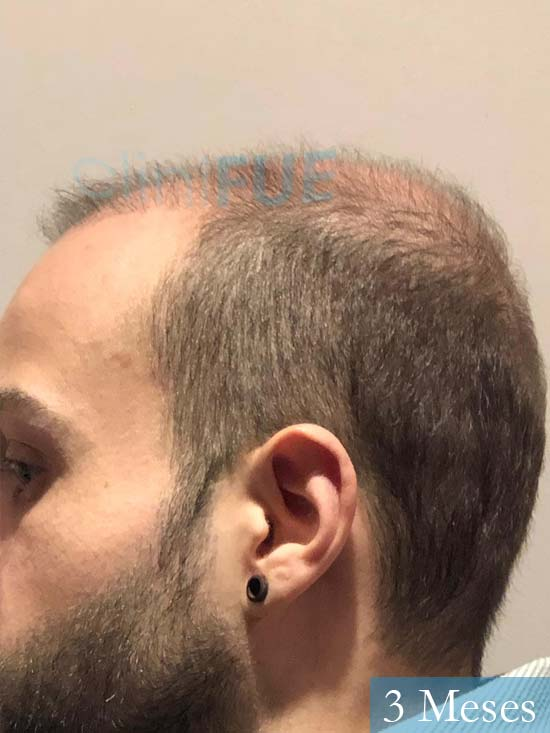 Alberto 27 Valencia trasplante capilar cliniFUE 3 meses 5