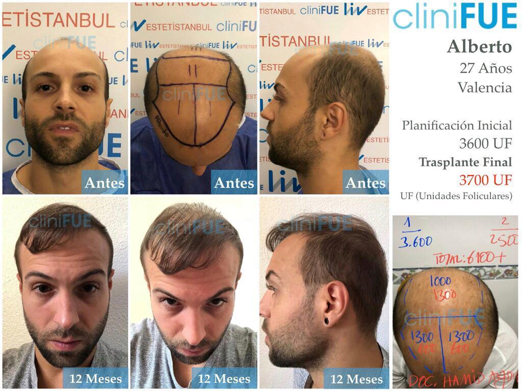 Alberto 27 Valencia trasplante capilar cliniFUE