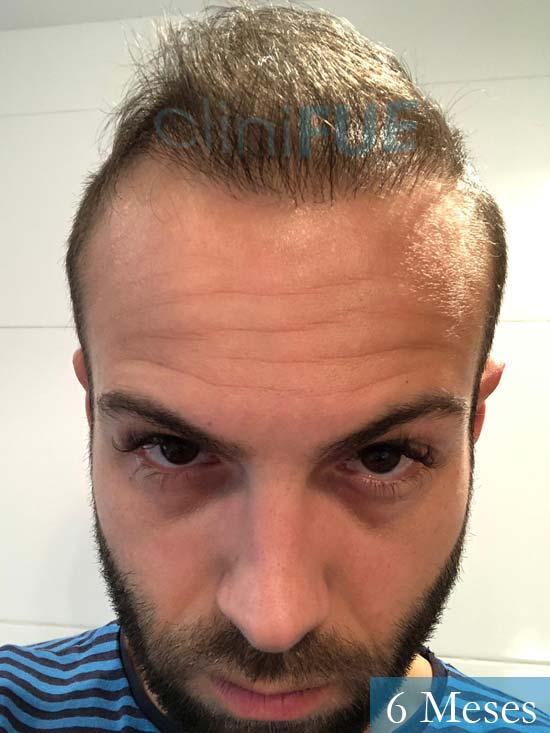Alberto 27 Valencia trasplante capilar cliniFUE 6 meses 2