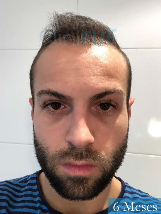 Alberto 27 Valencia trasplante capilar cliniFUE 6 meses