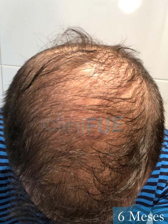 Alberto 27 Valencia trasplante capilar cliniFUE 6 meses 3