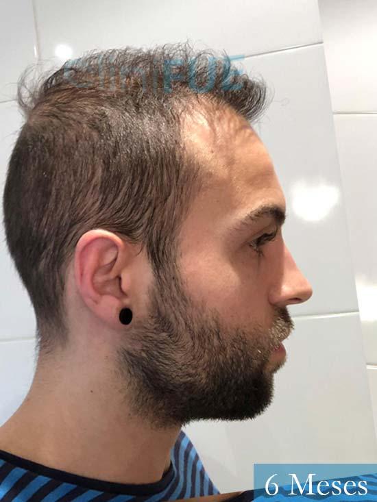 Alberto 27 Valencia trasplante capilar cliniFUE 6 meses 4