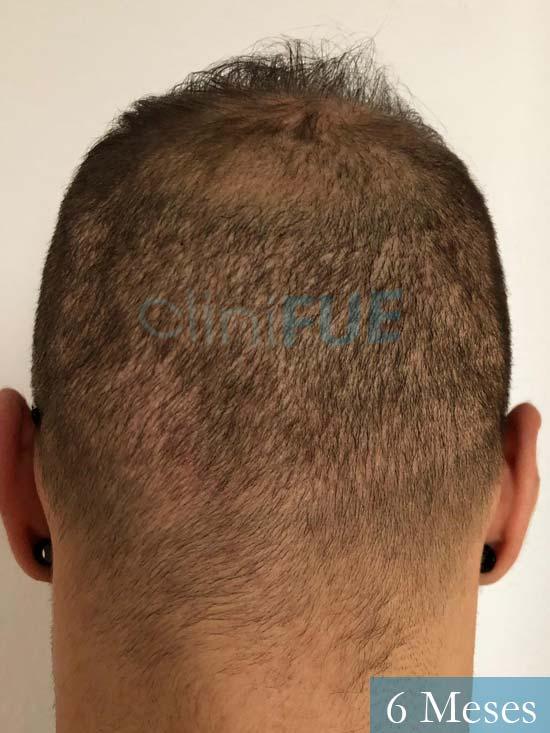 Alberto 27 Valencia trasplante capilar cliniFUE 6 meses 6