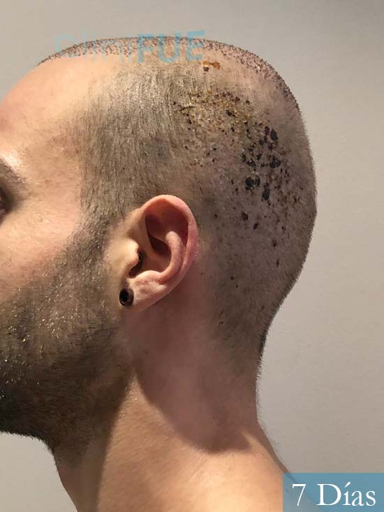Alberto 27 Valencia trasplante capilar cliniFUE 7 dias 5