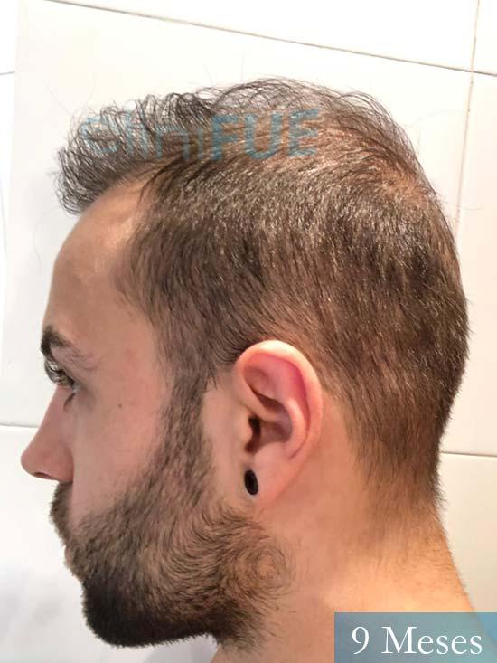 Alberto 27 Valencia trasplante capilar cliniFUE 9 meses 5