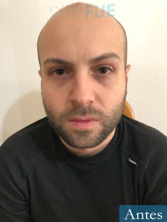 Alberto 27 Valencia trasplante capilar cliniFUE Antes