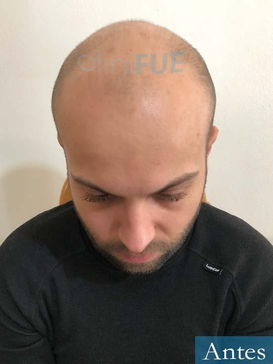 Alberto 27 Valencia trasplante capilar cliniFUE Antes 2