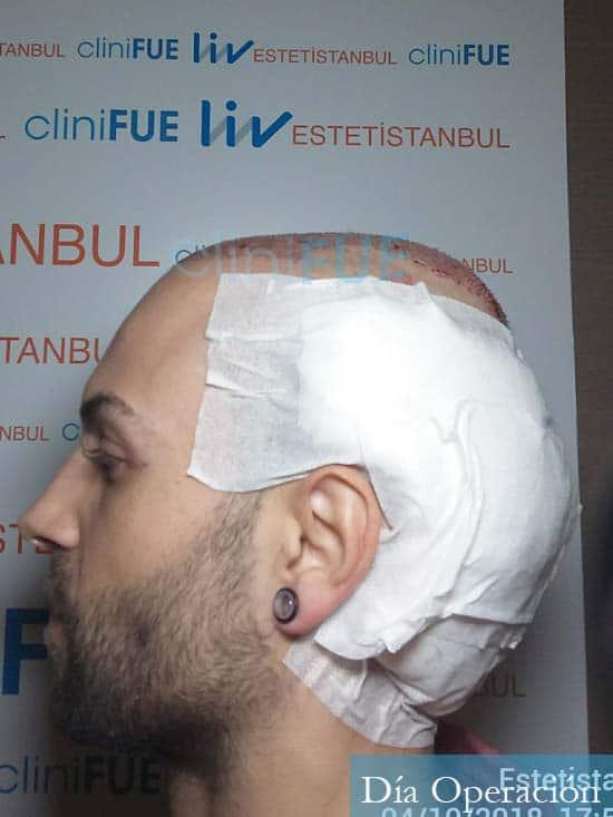 Alberto 27 Valencia trasplante capilar cliniFUE dia operacion 4