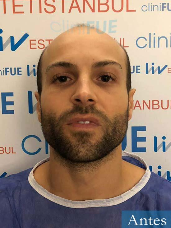 Alberto 27 Valencia trasplante capilar cliniFUE dia operacion
