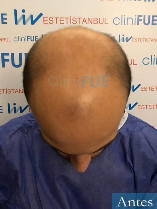 Alberto 27 Valencia trasplante capilar cliniFUE dia operacion 2