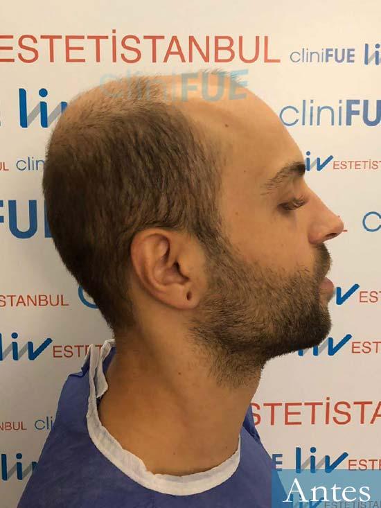 Alberto 27 Valencia trasplante capilar cliniFUE dia operacion 3
