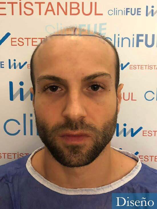 Alberto 27 Valencia trasplante capilar cliniFUE dia operacion diseno